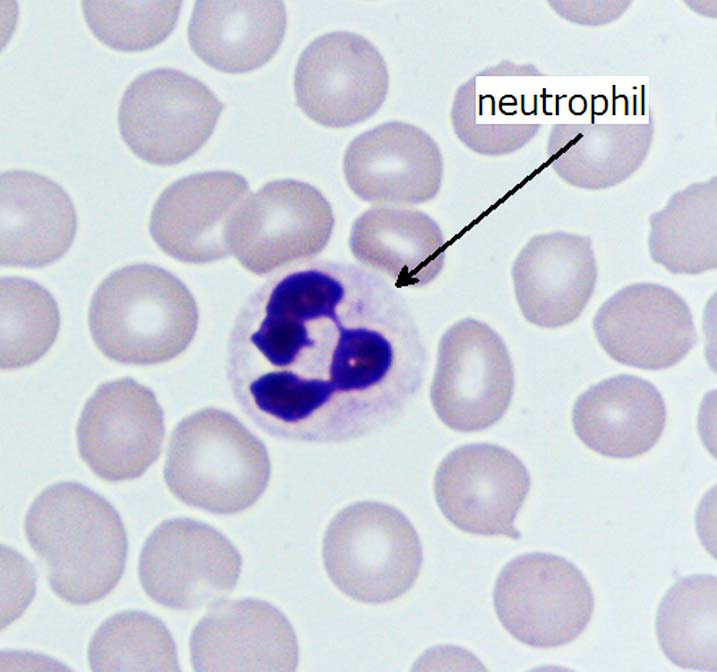 Human neutrophil (white blood cell) surrounded by erythrocyte (red blood cells).