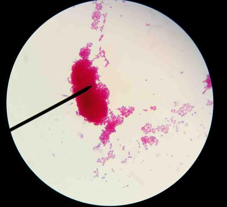 Acid-fast Mycobacterium has a waxy cell wall and stains hot pink after ziehl neelsen staining.