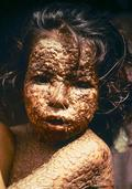 Girl infected with smallpox. Bangladesh, 1973.